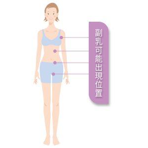 副乳出現的位置